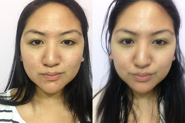 Before and After three weeks post-facial.