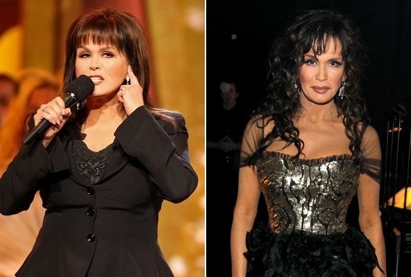 Marie Osmond Weight Loss Pictures Before And After Marie Osmond S