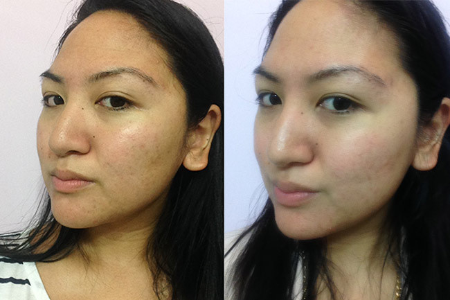Before and after three weeks post-facial