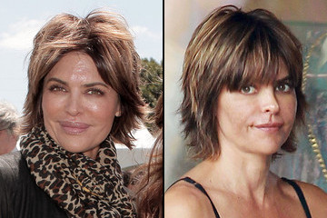 Lisa Rinna's Before and After Plastic Surgery Pictures Revealed